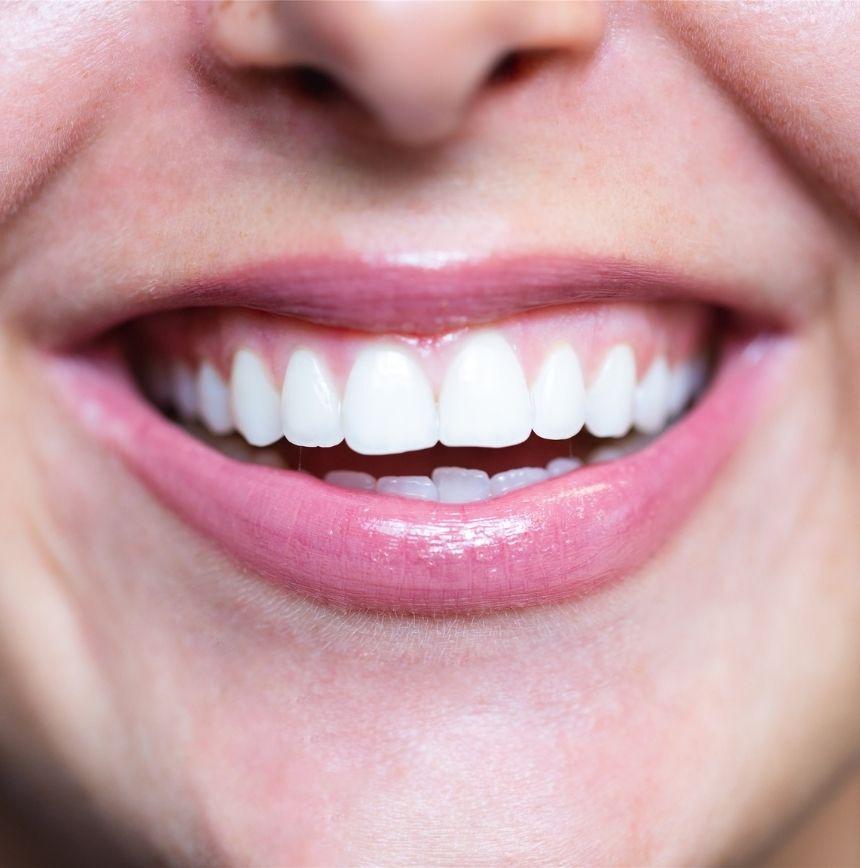 Image facettes dentaires clinique dentaire du lac