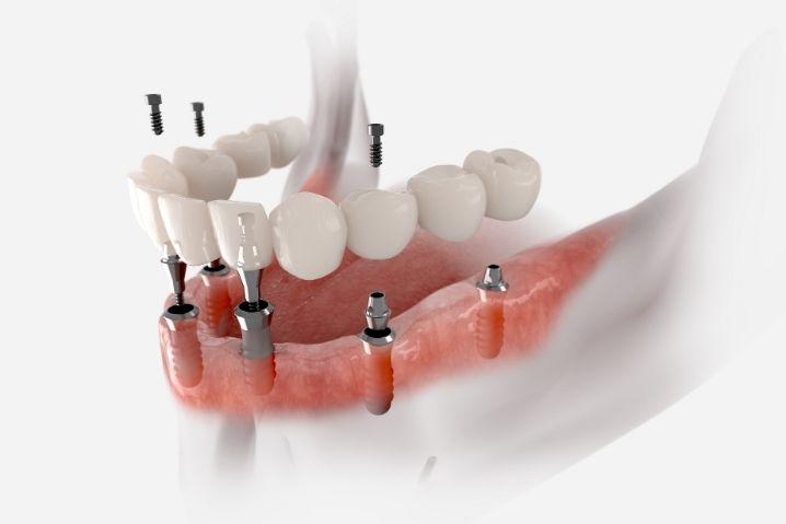 Prothèse sur implant - Clinique dentaire du lac (2)